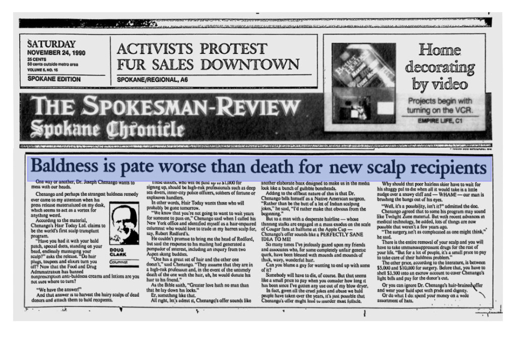Baldness is pate worse than death for new scalp recipients, by Doug Clark, Spokesman-Review Spokane Chronicle, November 24, 1990